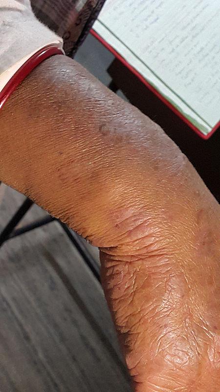 Dermatitis -- improving with Fagopyrum