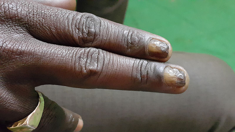 Nails -- Varieties of Pathologies seen and discussed in Calcutta Programme